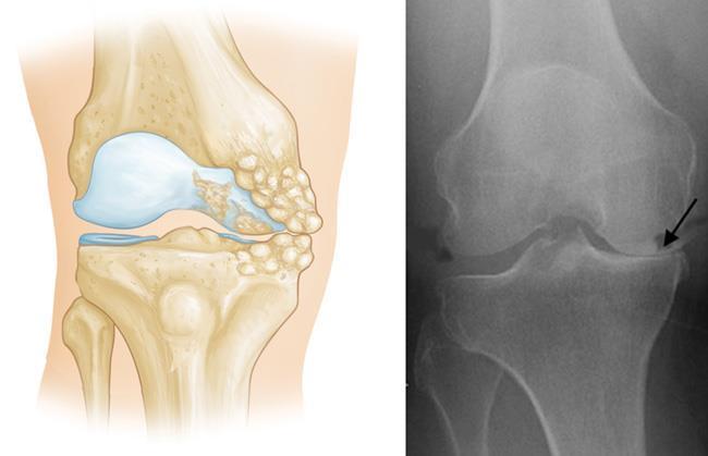 Medial Osteoarthritis