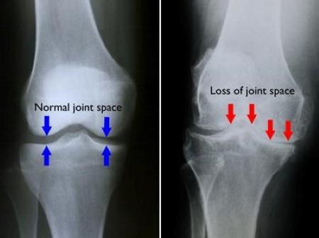 healthy knee vs arthritic knee x-rays