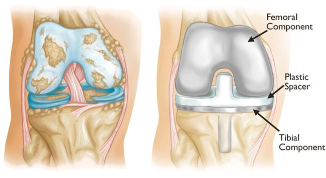 Severe osteoarthritis vs Total Knee Replacement